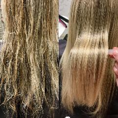 Терапия за коса с био плекс